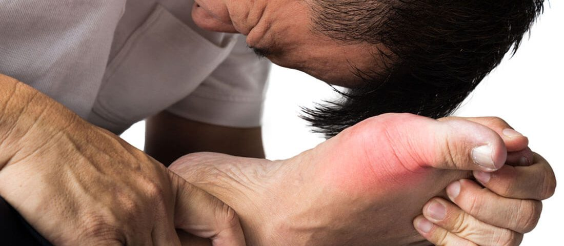 Gout can affect your sexual health and performance
