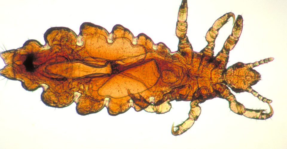 All you need to know about pubic lice